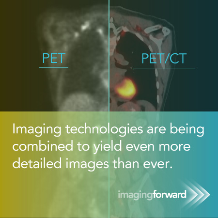 PET, PET/CT - Imaging technologies are being combined to yield even more detailed images than ever.